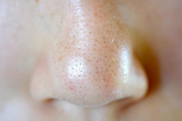 毛穴を知って毛穴を制す!顔の毛穴はホントに必要?『毛穴なんていらない!』女性たちを悩ませるその毛穴。実はお肌の味方?